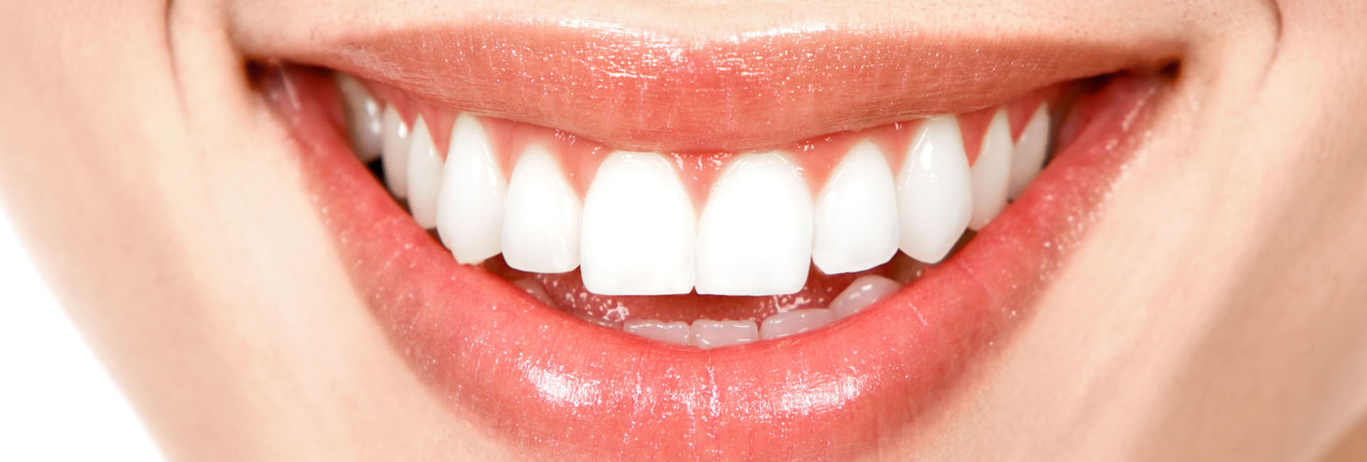arrfox, clinica dental, condesa, sonrisa, perfecta